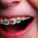 Is Your Child Ready for the Orthodontist?